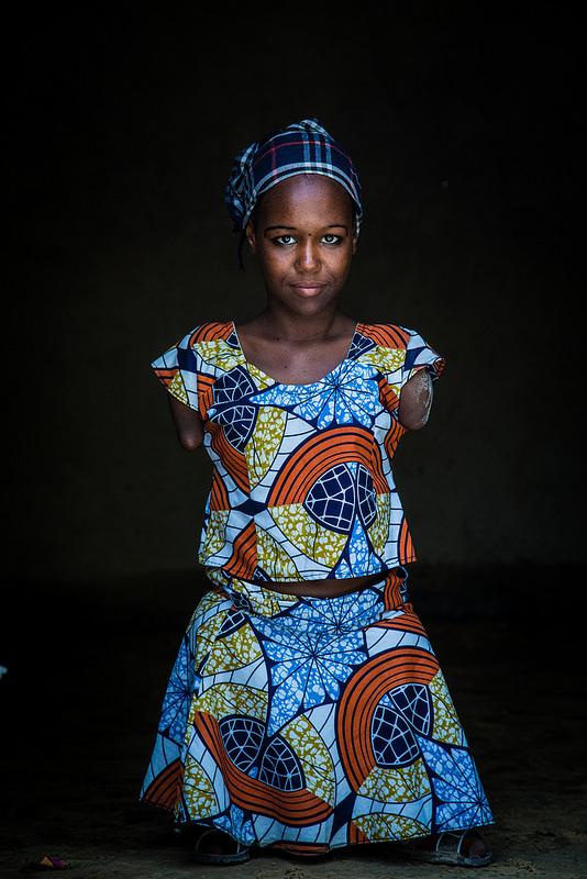 """Aicha,  Niger -  """"Pochodzę z Damassak  w Nigerii. Chciałabym być prawnikiem i mogłabym wówczas bronić ludzi. Urodziłam się niepełnosprawna, ale chcę zapomnieć o tym by osiągnąć swój cel w życiu. Byłam uchodźcą w Nigrze, teraz jestem tu szczęśliwa."""""""